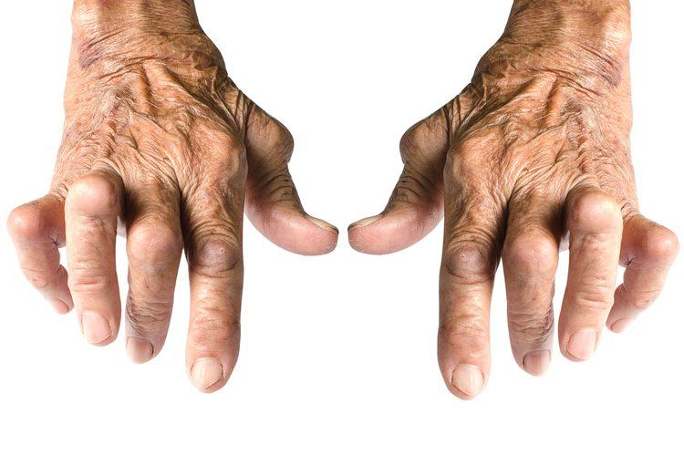 Boswellia benefits arthritis