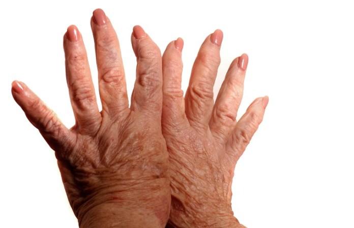 Mustard Health Benefits for Arthritis