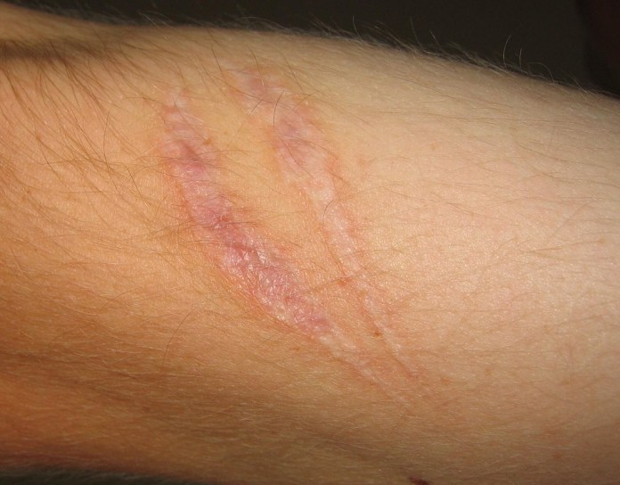 Reduction of Scars 1