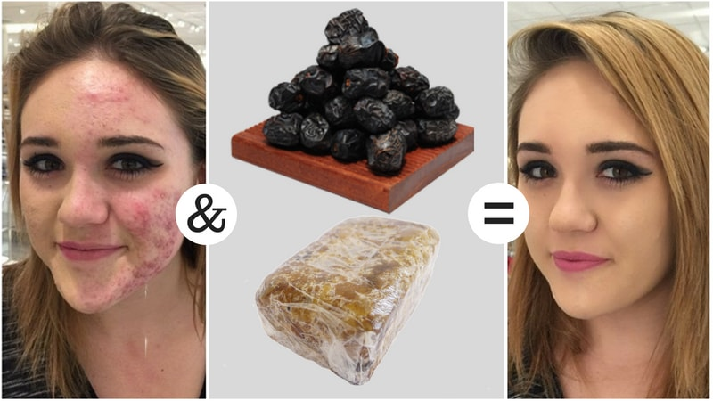 black soap for elimination of acne