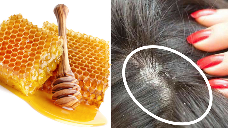 honey for prevention of dandruff