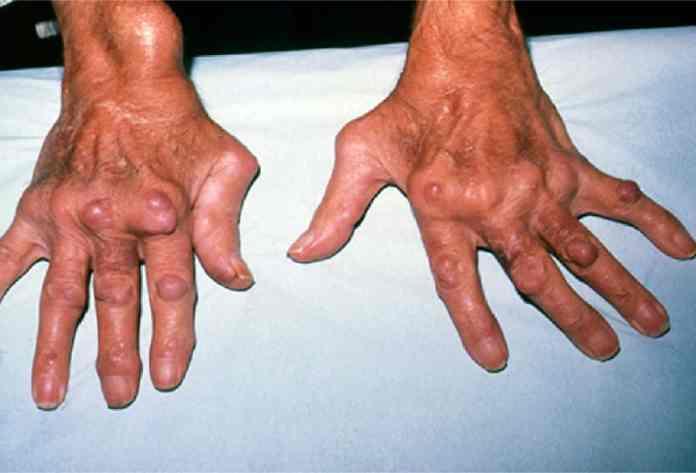 rosemary tea benefits for arthritis