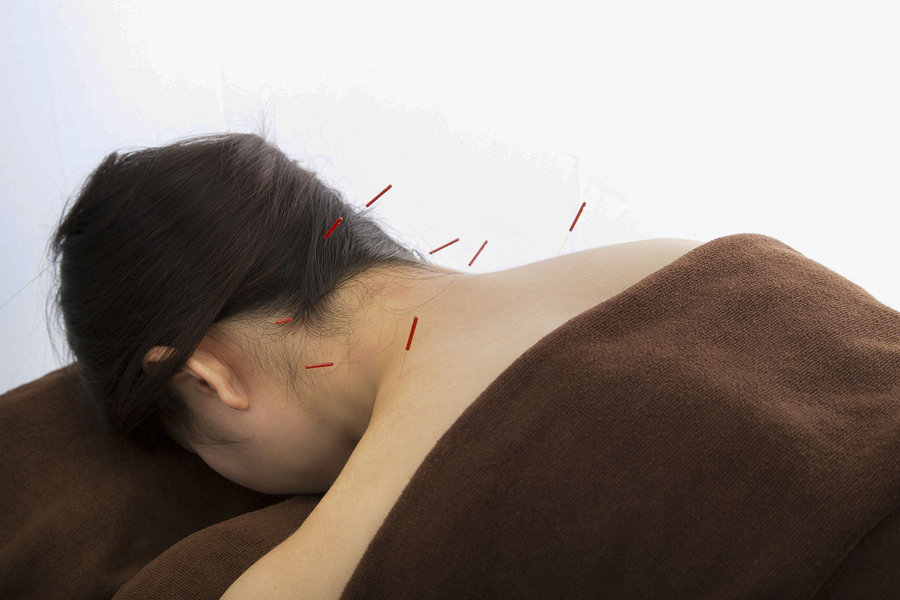 Acupressure Therapy to Alleviate Neck Strain from Sleeping