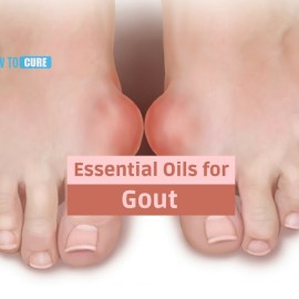 essential oils for gout