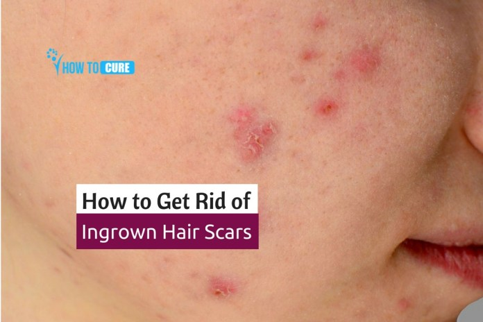 get rid of ingrown hair scars