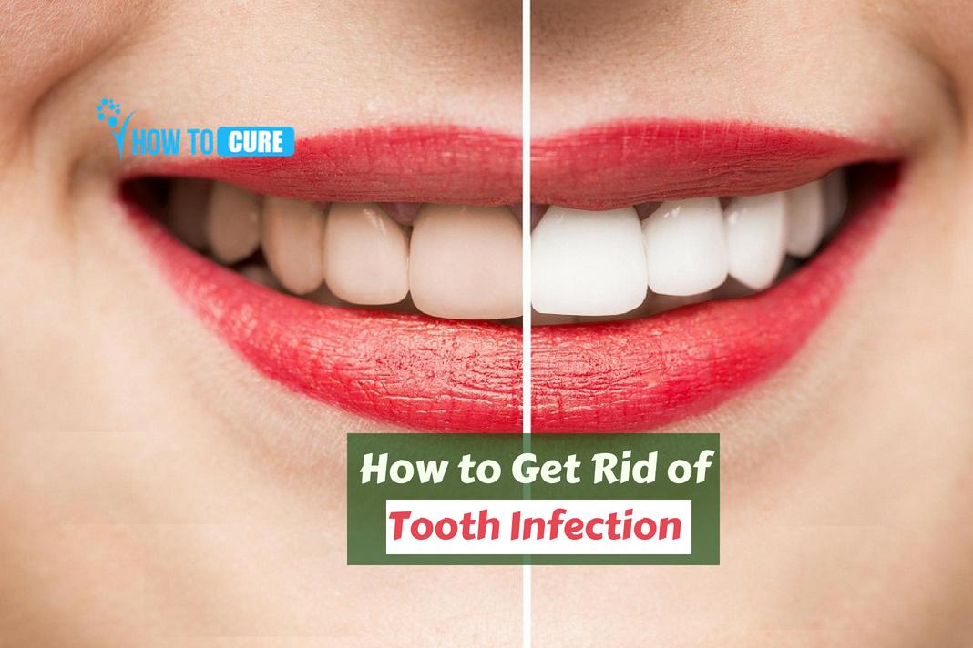 otc antibiotics for tooth infection
