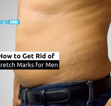 how to get rid of stretch marks for mens