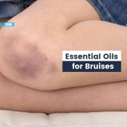 essential oils for bruises