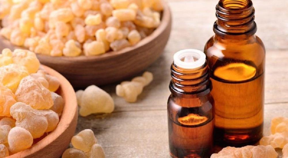 frankincense essential oil for sunburns