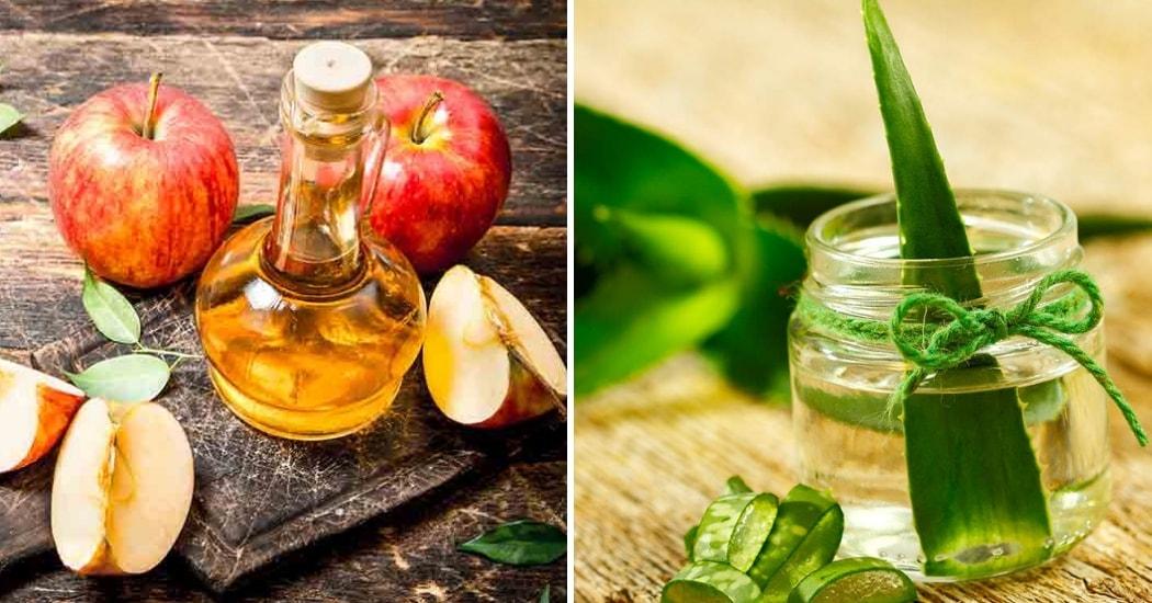 apple cider vinegar and aloe vera gel for warts