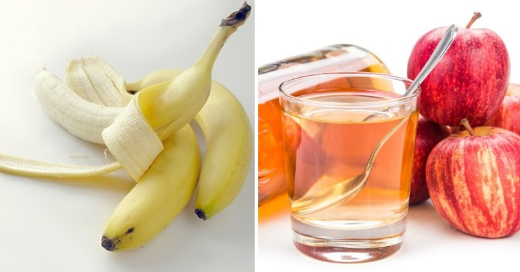 banana skins and apple cider vinegar for warts