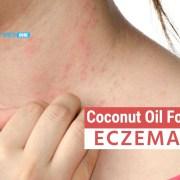 coconut oil for eczema