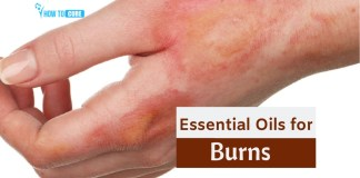 essential oils for burns