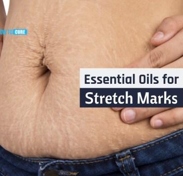 essential oils for stretch marks