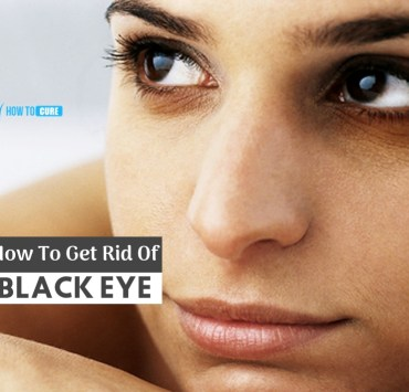 how to get rid of a black eye