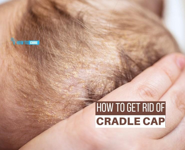 how to get rid of cradle cap
