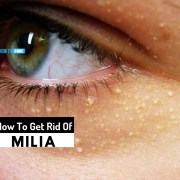 how to get rid of milia