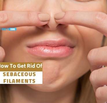 how to get rid of sebaceous filaments