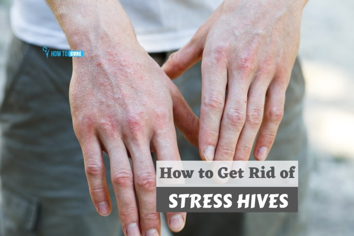 how to get rid of stress hives