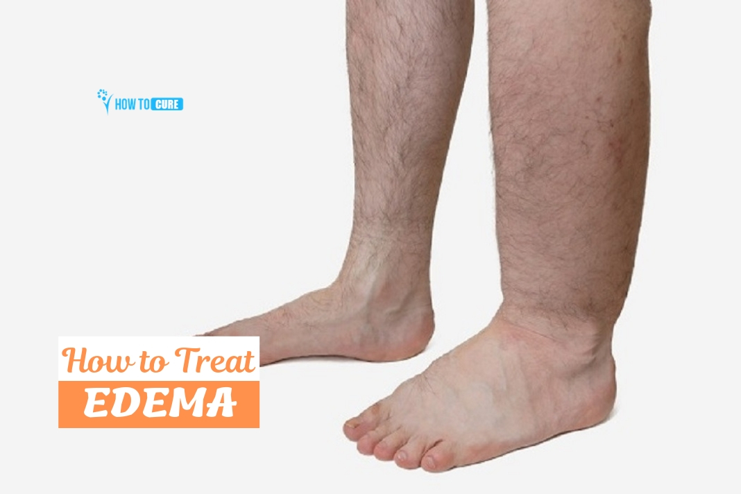 how to treat edema naturally