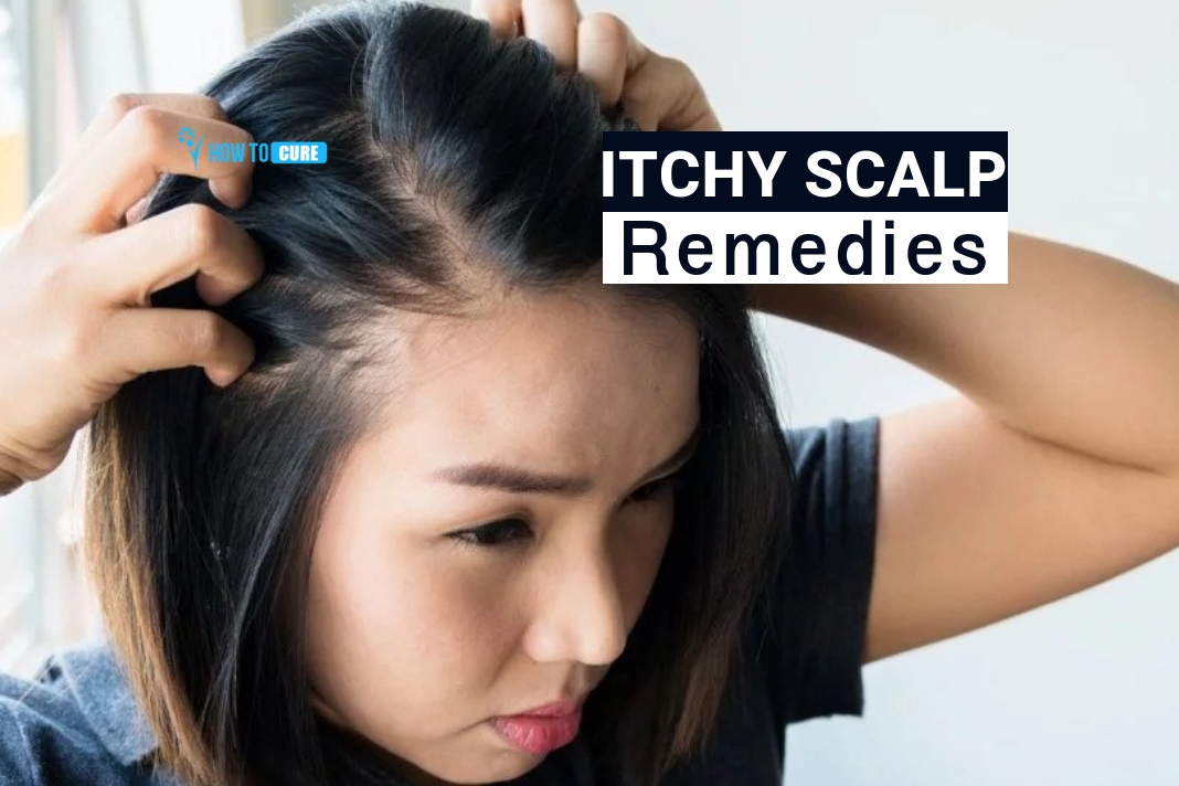 Itchy Scalp cure