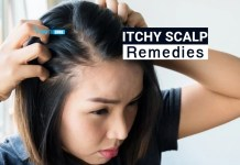 itchy scalp remedies