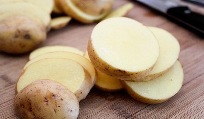 potato for treat a black eye