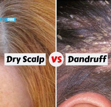 dry scalp vs dandruff