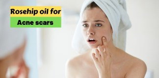 Rosehip oil for acne scars