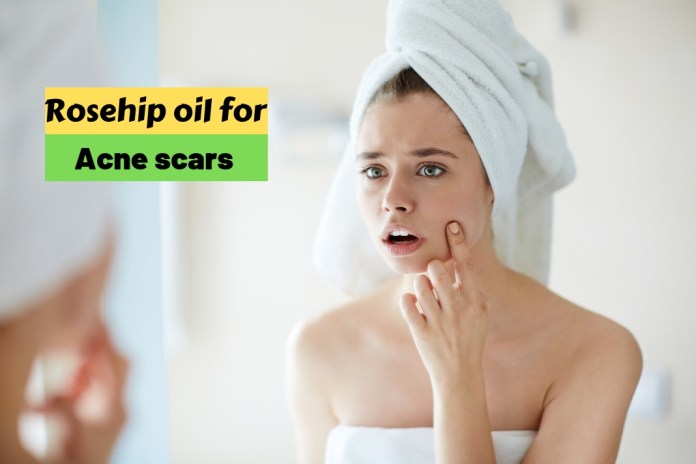 Rosehip oil for acne scars