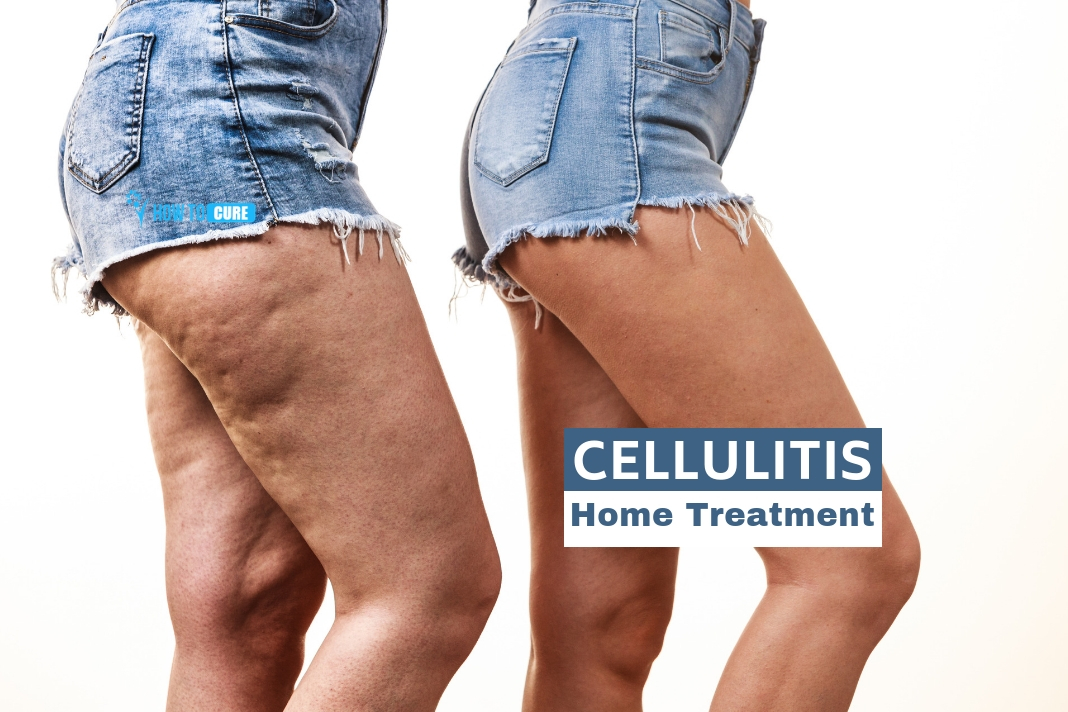Cellulitis Home Treatment: 5 Proven Remedies | How to Cure
