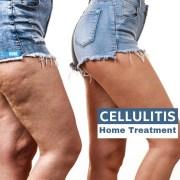 cellulitis home treatment