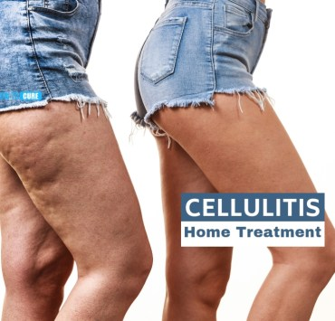 cellulitis home treatment