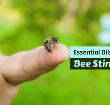 essential oils for bee stings