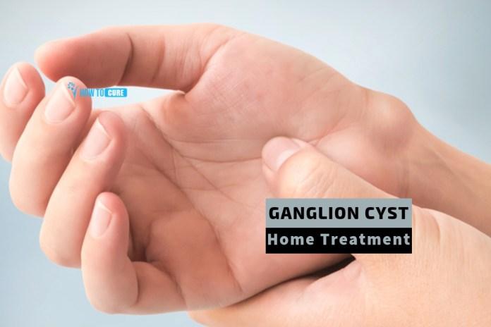 ganglion cyst home treatment