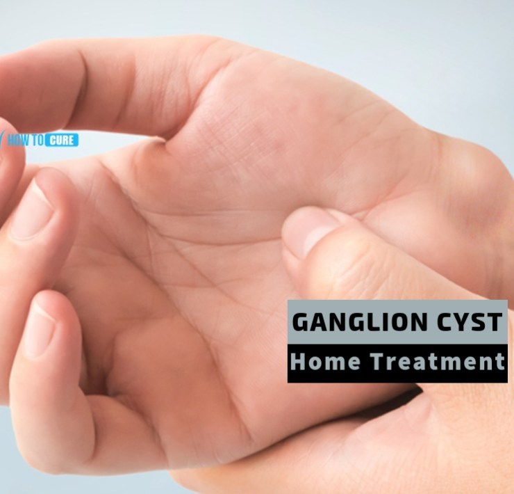 ganglion cyst home treatment