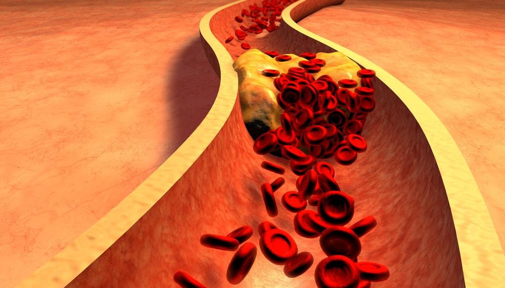 high cholesterol-min