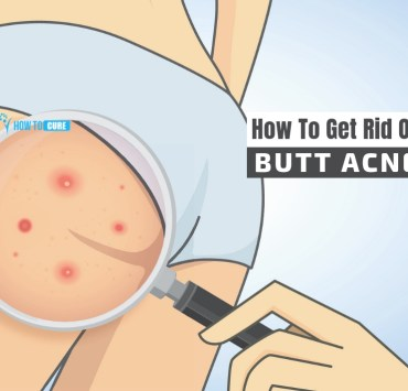 how to get rid of butt acne