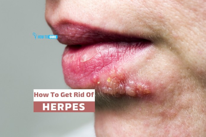 how to get rid of herpes