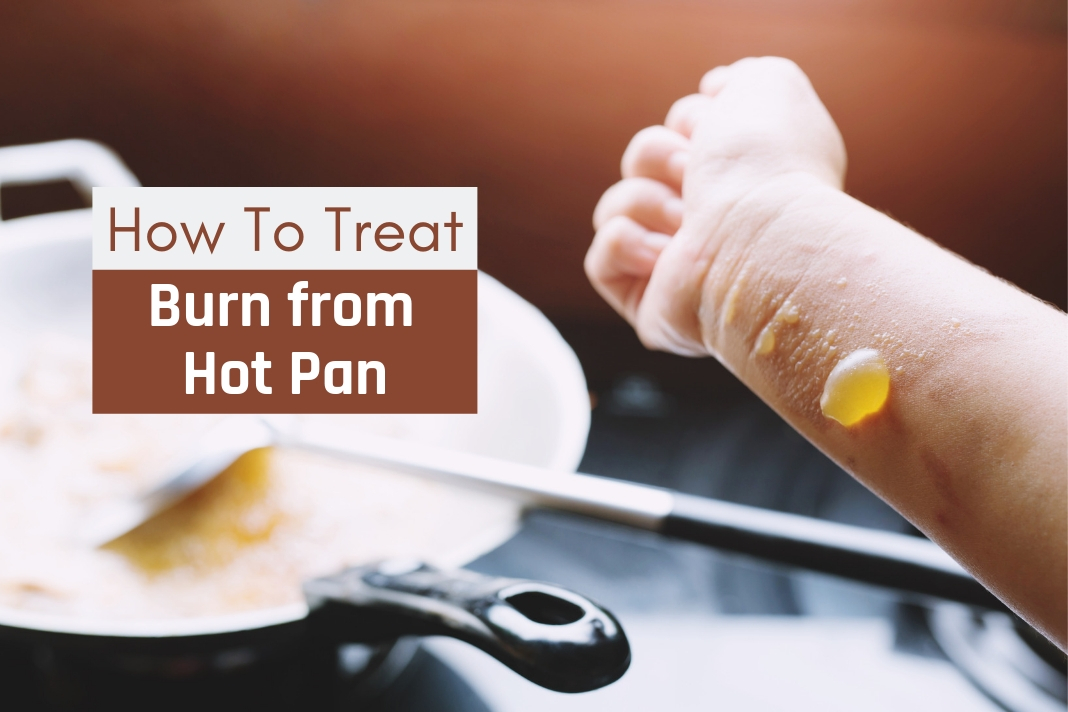 how to treat burn from hot pan