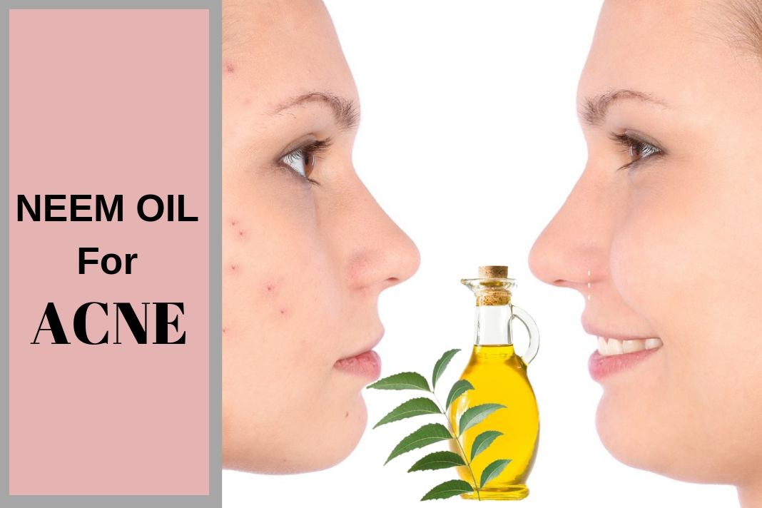 How to treat Acne with Neem Oil - Natural Remedies