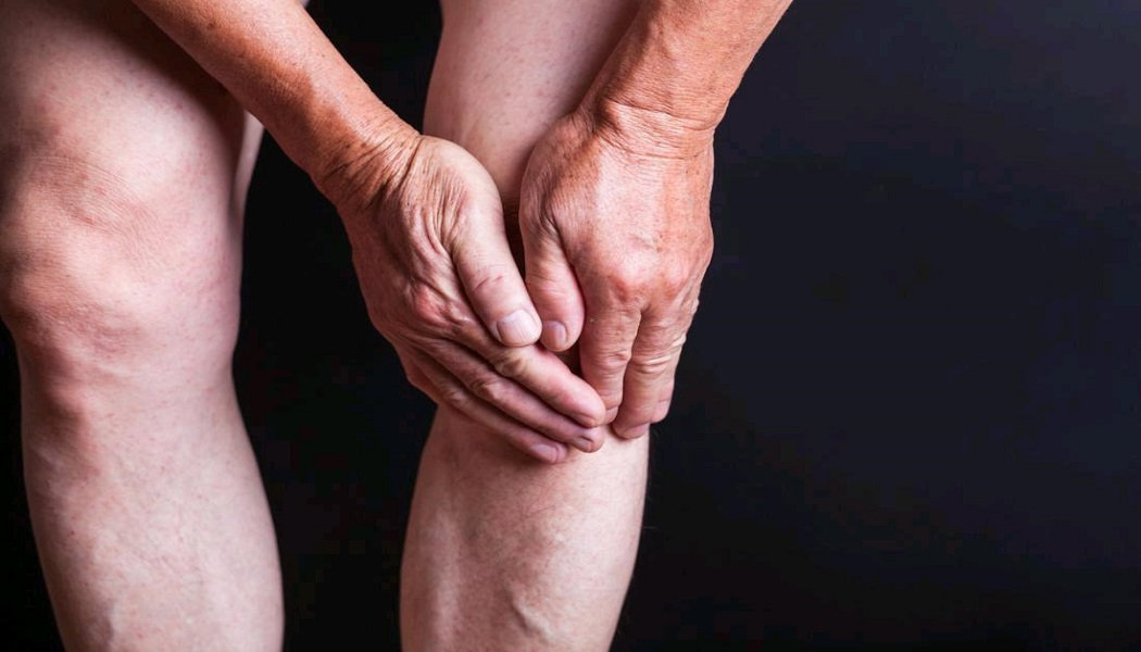 yucca for relieves arthritis