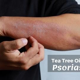 Tea Tree Oil for Psoriasis