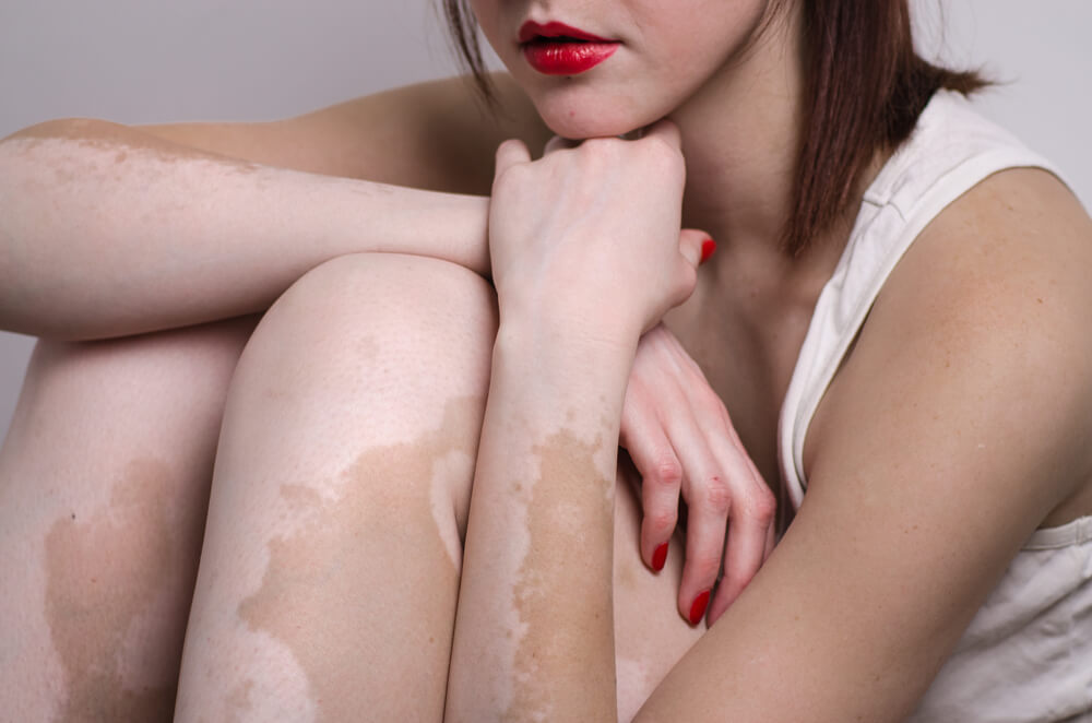 how to get rid of tinea versicolor