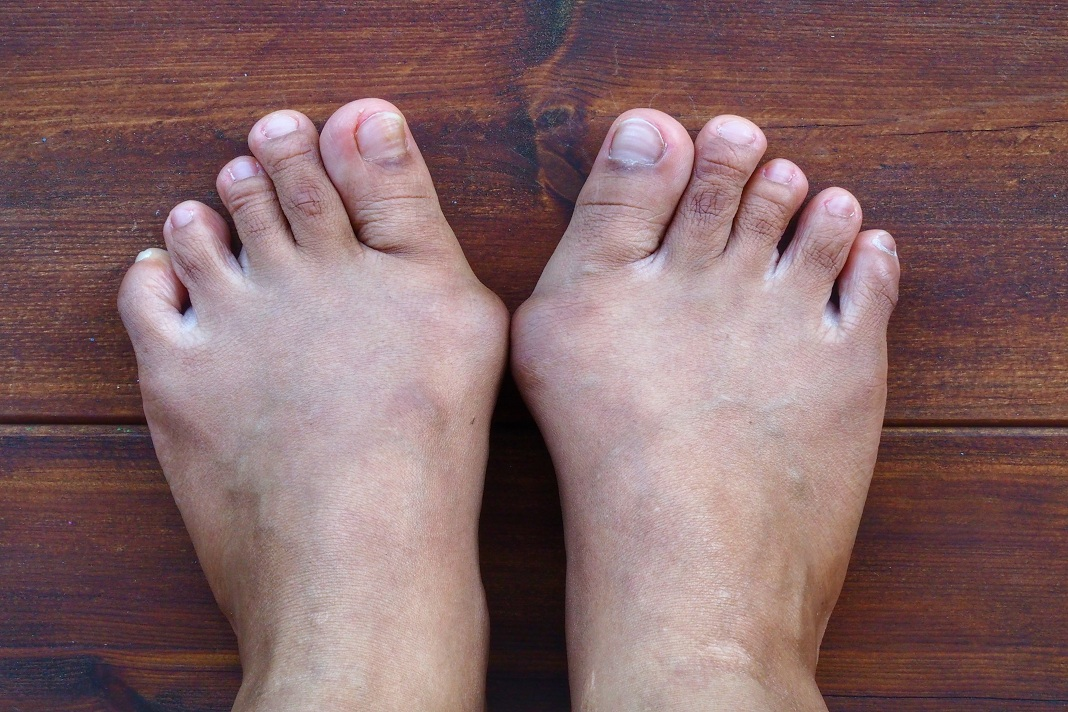 How to get rid of bone spurs the natural way? | How to Cure