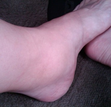 how to get rid of cankles