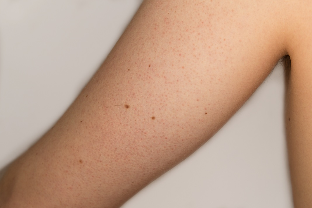 how to get rid of keratosis pilaris