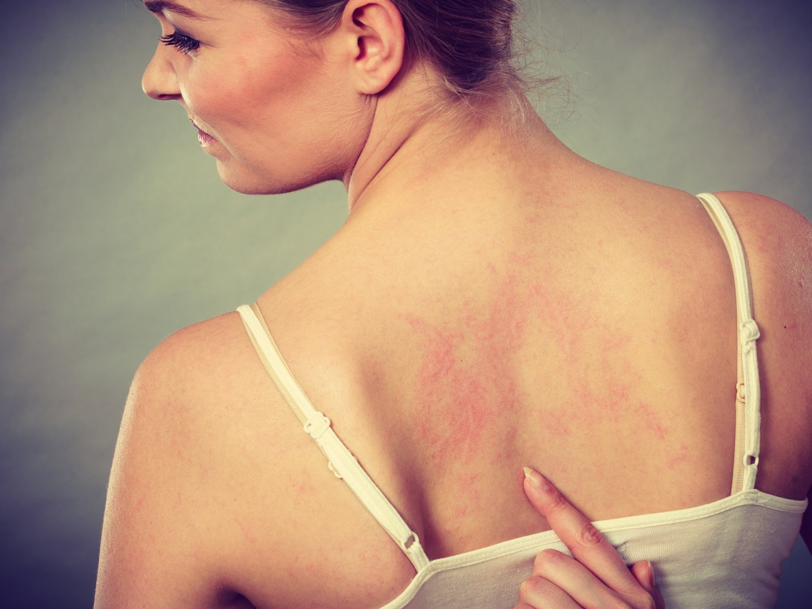 get rid of redness of skin