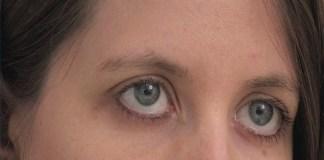 rid-calcium-deposits-under-eyes