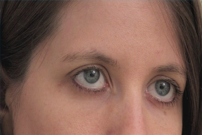 rid-calcium-deposits-under-eyes